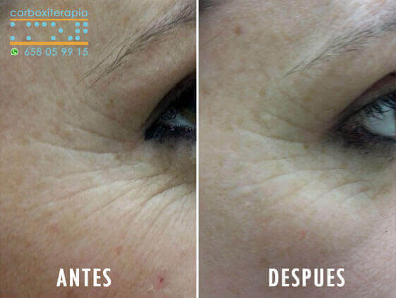 Carboxiterapia Facial ANTES y DESPUES