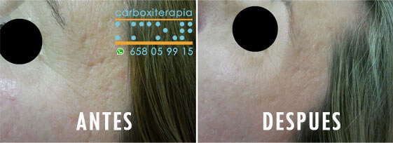 Carboxiterapia Acne ANTES y DESPUES