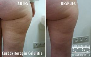 Carboxiterapia Celulitis Tratamiento en MADRID