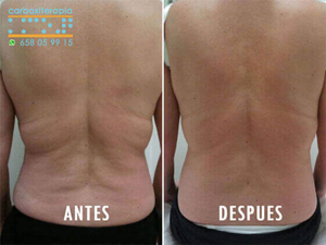 Carboxiterapia Flacidez ANTES y DESPUES