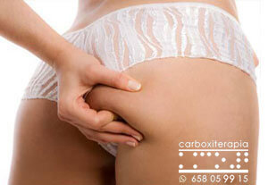 Tratamientos Esteticos Carboxiterapia Flacidez Corporal en MADRID