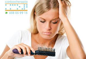 Tratamientos Medicos Carboxiterapia para Alopecia en Madrid