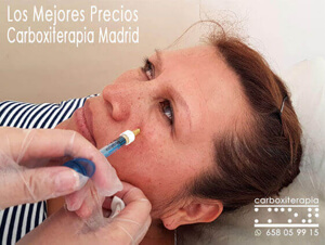 Carboxiterapia Precio Madrid Centro