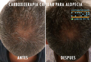 Carboxiterapia Capilar Antes y Despues Fotos Madrid