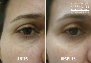 Carboxiterapia Ojeras Antes y Despues Fotos 2018