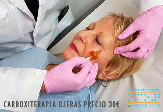 Carboxiterapia Ojeras Precio Madrid Centro