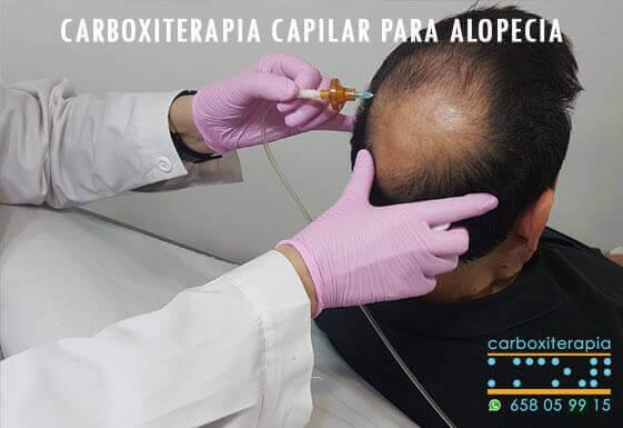 Tratamiento Carboxiterapia Capilar para Alopecia en Madrid