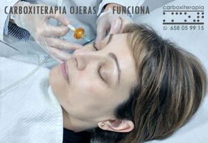 Carboxiterapia Ojeras Funciona Madrid