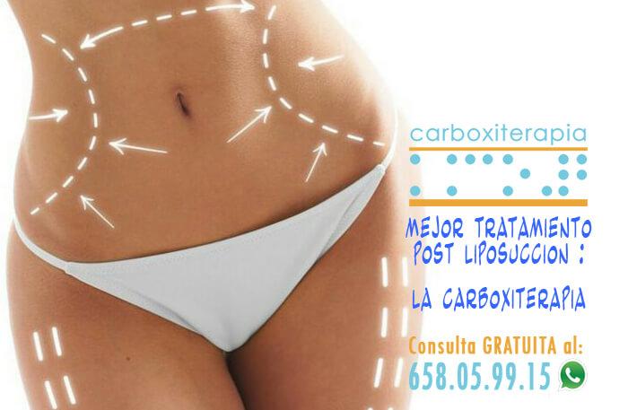 El Mejor Tratamiento Post Liposuccion es la Carboxiterapia ( NO es el Drenaje Linfatico Manual )