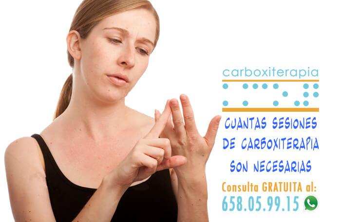 Cuantas Sesiones de Carboxiterapia son necesarias para las Ojeras, Celulitis…